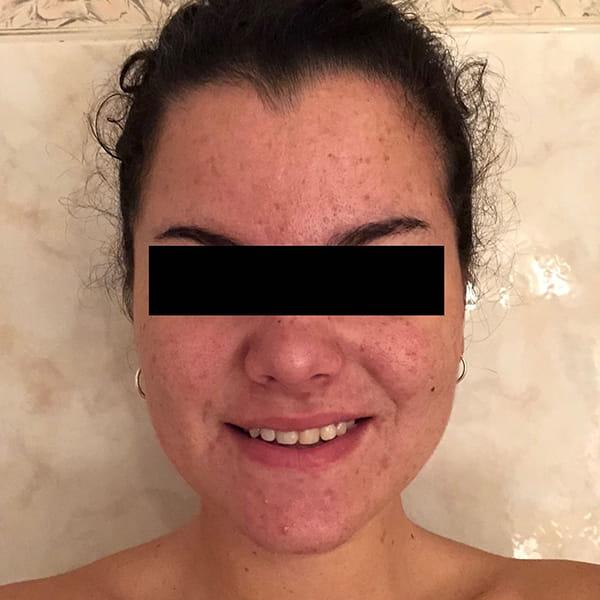 Tratamiento contra el acné con Espirulina ASN 1