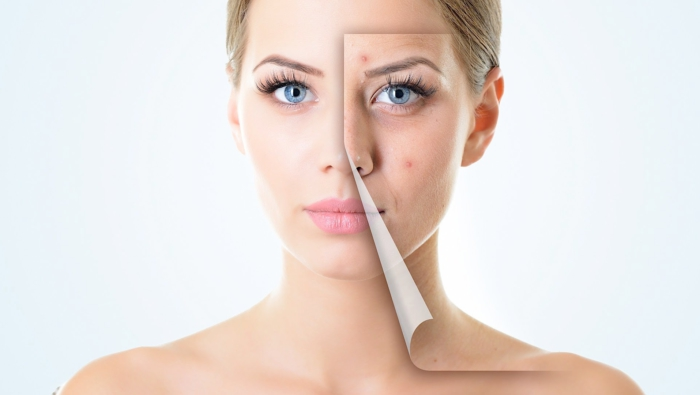 Tratamiento contra el acné con Espirulina ASN