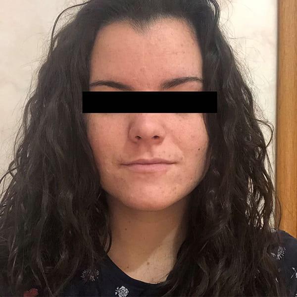 Tratamiento contra el acné con Espirulina ASN 3