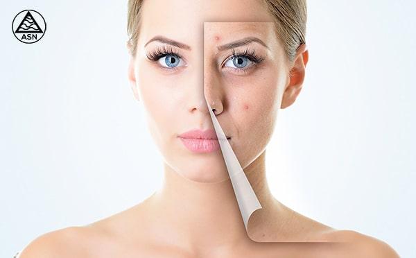Tratamiento contra el acne con ASN Espirulina